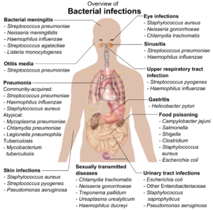 chart of bacterial infections in humans